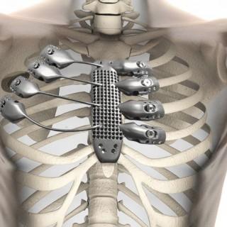 3d-printed-sternum-ribs